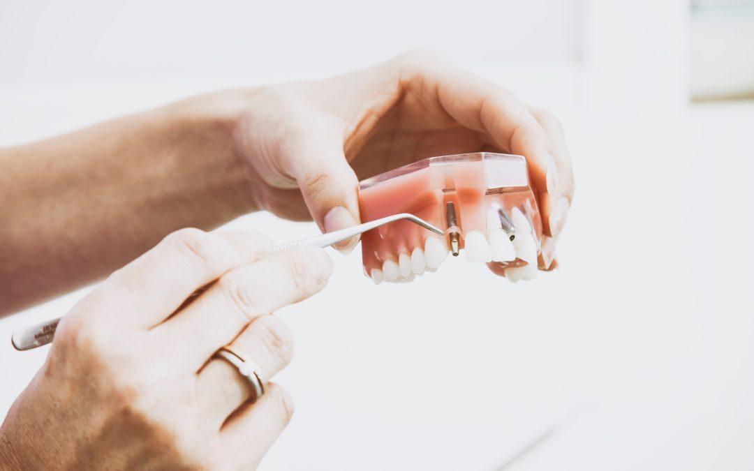 Impianto dentale dolori