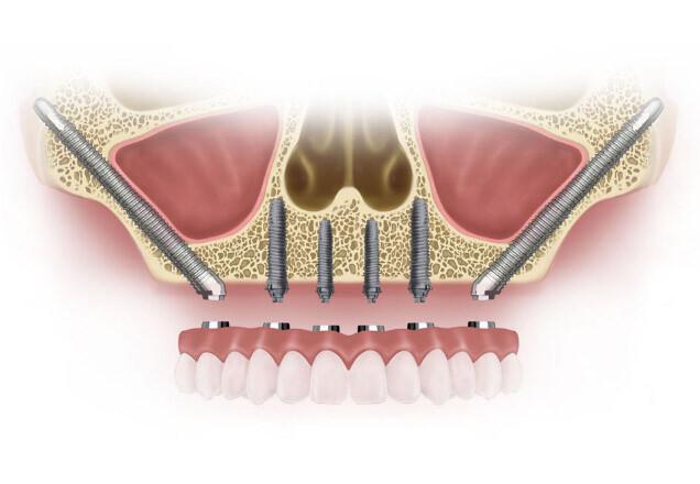 impianti-zigomatici atrofie mascellari