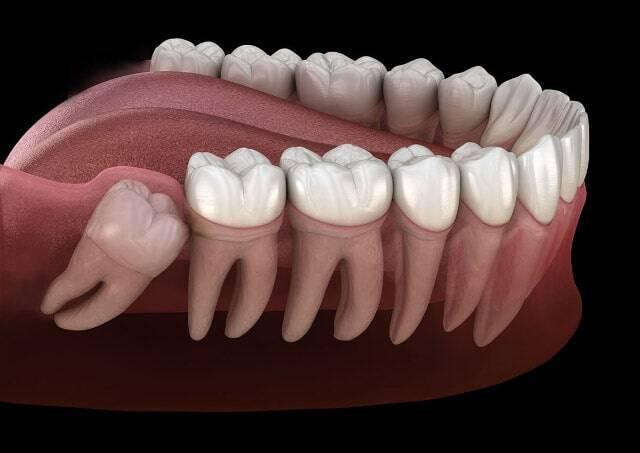Anestesia totale e denti del giudizio