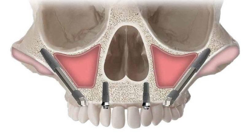 Denti fissi senza osso